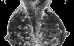mtmi mammography tomosynthesis Genius™ 3d mammography™ vote today for 3d™ mammograms and reduce unnecessary callbacks mtmi digital breast tomosynthesis (dbt.