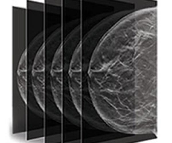 8 hours of digital mammography training